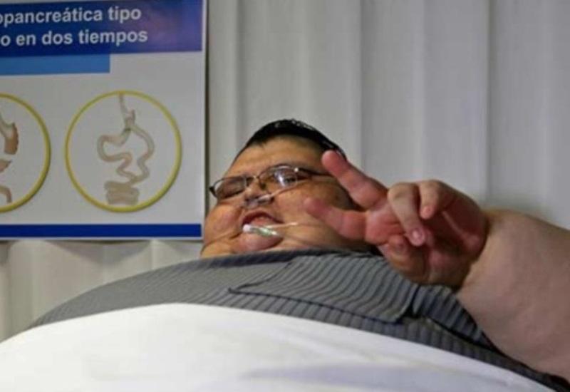 Ya bajo 175 kilos, el mexicano considerado el más obeso del mundo