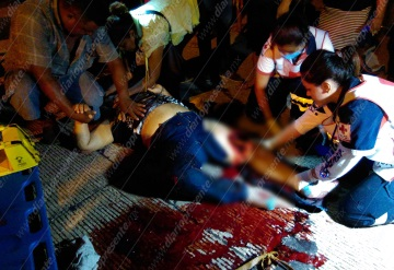 Mujer fallece tras fracturarse una pierna en accidente | Villahermosa