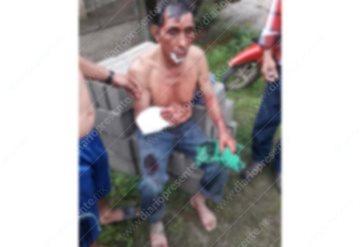 Asaltan y machetean a un abuelito en Cárdenas