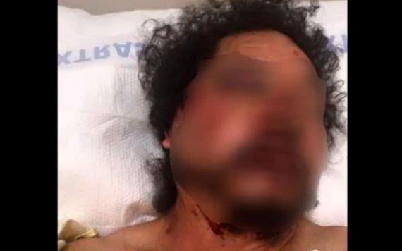 Afroamericanos golpean a un mexicano en LA