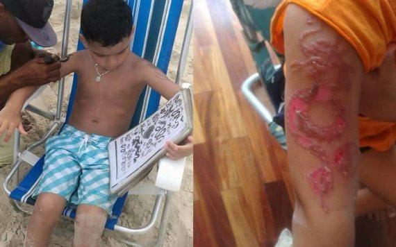 Niño sufre alergia tras hacerse un tatuaje de Henna
