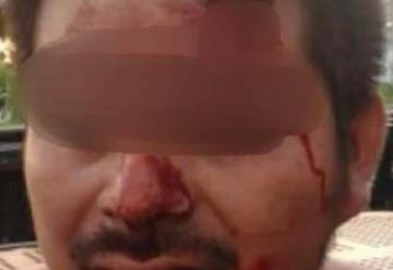 Lesiona y viola a su esposa; le arranca los pezones a mordidas