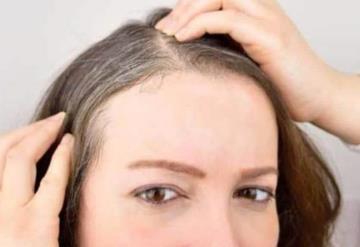 Si tienes psoriasis, piensa bien antes de teñirte el cabello