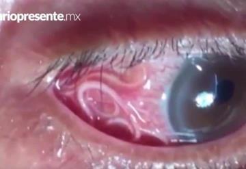 VIDEO: Retiran gusano del ojo de un hombre