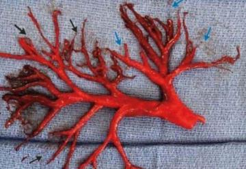 Tose y de su boca sale enorme coágulo de sangre en forma de árbol