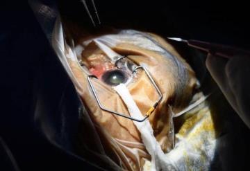Aumentan casos de cáncer ocular