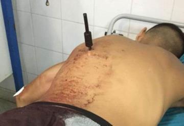Mujer le clava un puñal al delincuente que intentó robar su motocicleta