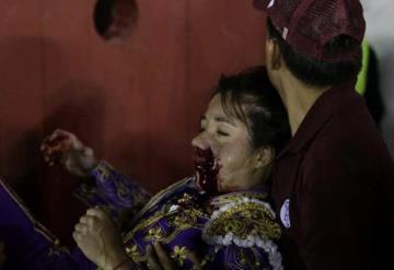 Toro le destroza la cara a matadora mexicana