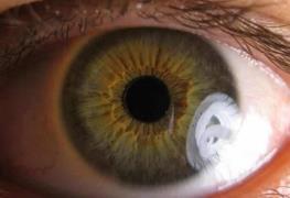 Podrías estar en riesgo de padecer glaucoma; qué es el glaucoma y por qué da