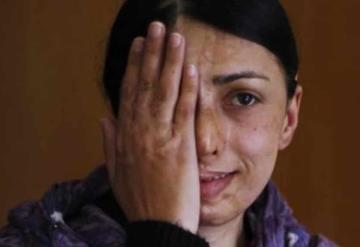 Avalan hasta 15 años de cárcel para quien ataque con ácido a mujeres