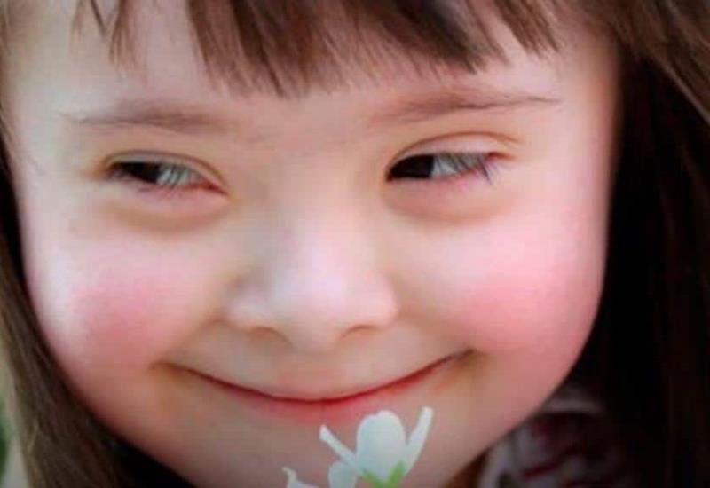 21 de marzo: Día Mundial del Síndrome de Dowm