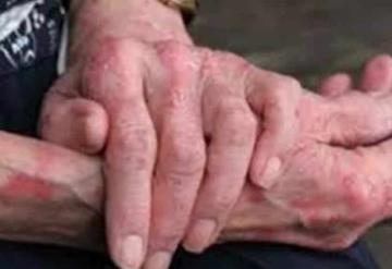 Reportan 4 casos de lepra en Chiapas
