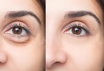 Te decimos cómo eliminar ojeras y bolsas de ojos